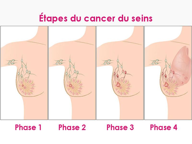 L'évolution du cancer du sein